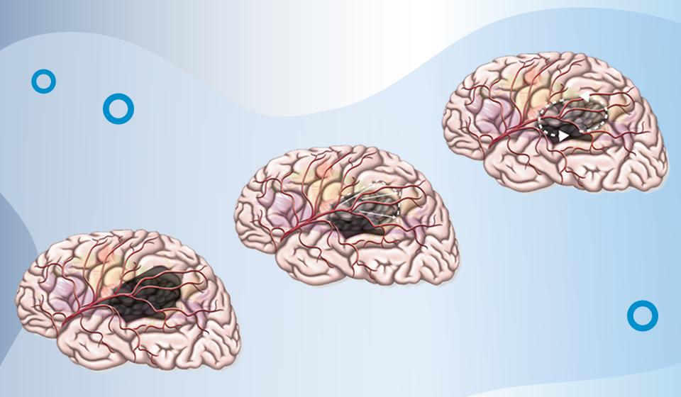 Gliom-Therapie: neue Bücher für Neurochirurgen und Neuroradiologen
